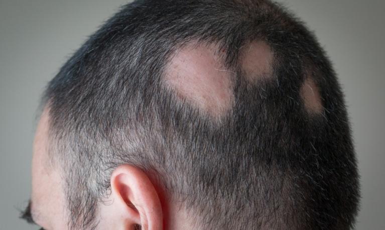 Saç Dökülmesi Hakkında Merak Ettikleriniz!